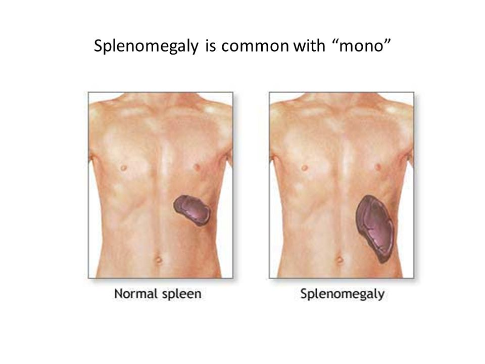 """Splenomegaly is common with """"mono"""""""