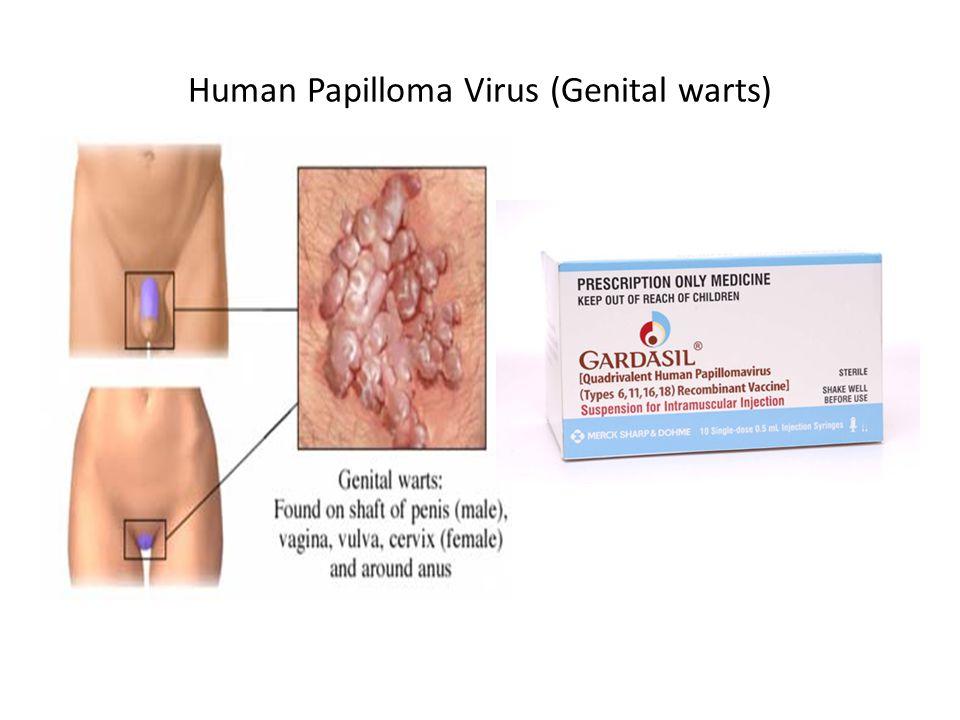 Human Papilloma Virus (Genital warts)