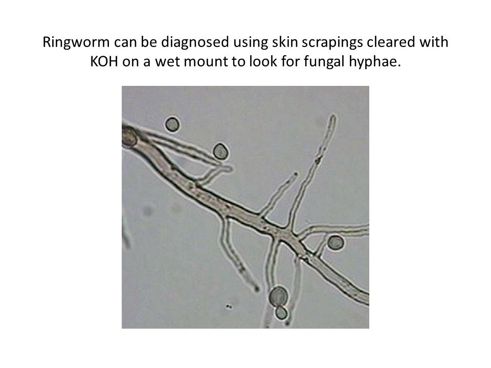 Ringworm can be diagnosed using skin scrapings cleared with KOH on a wet mount to look for fungal hyphae.