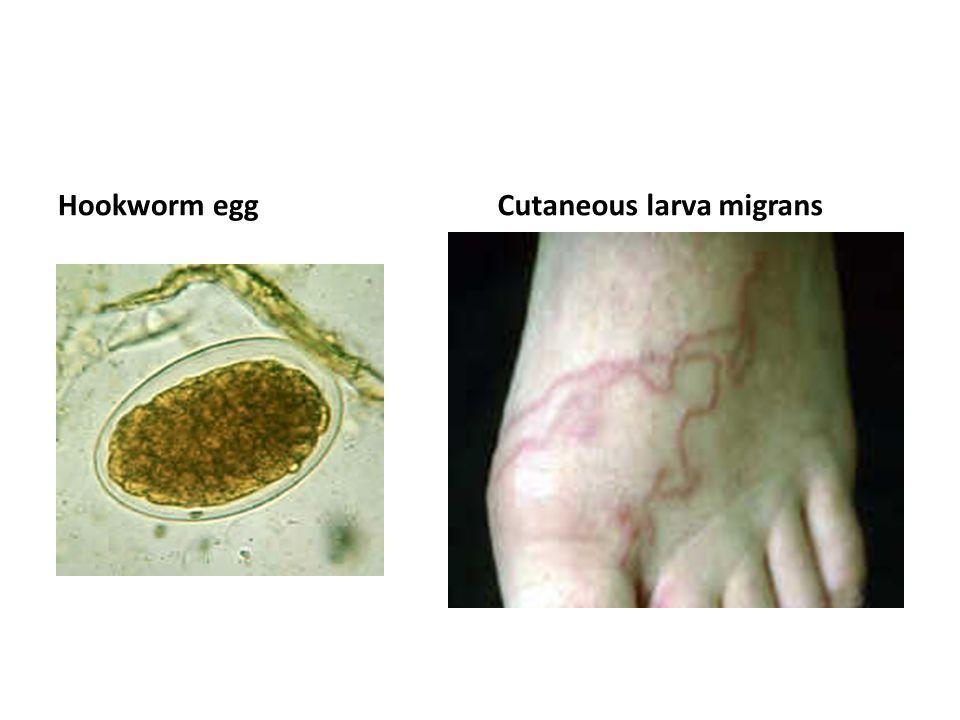 Hookworm eggCutaneous larva migrans