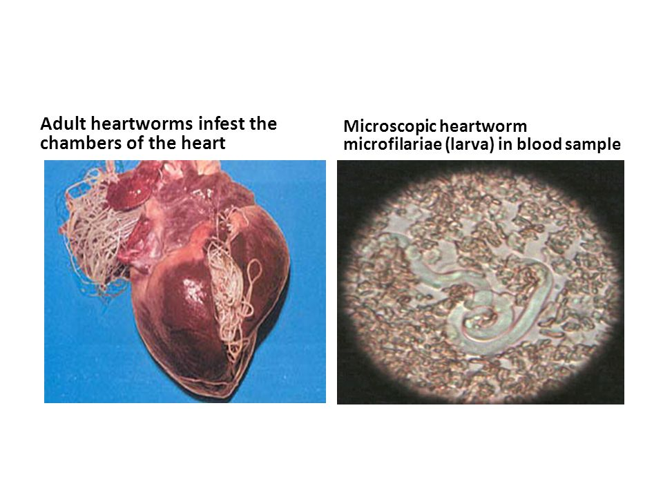 Adult heartworms infest the chambers of the heart Microscopic heartworm microfilariae (larva) in blood sample