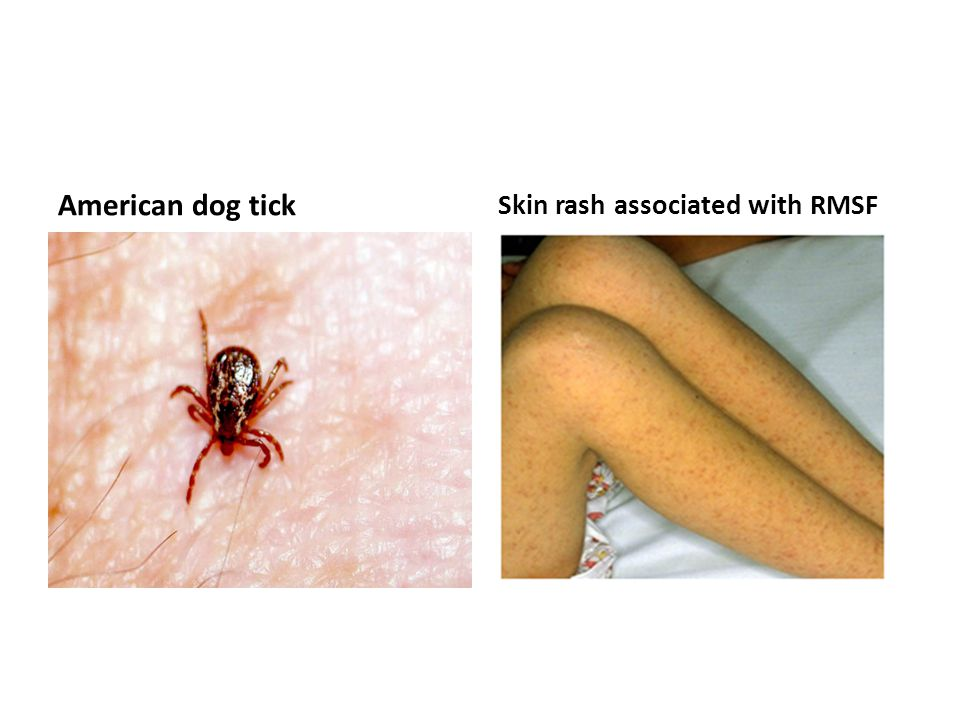 American dog tick Skin rash associated with RMSF