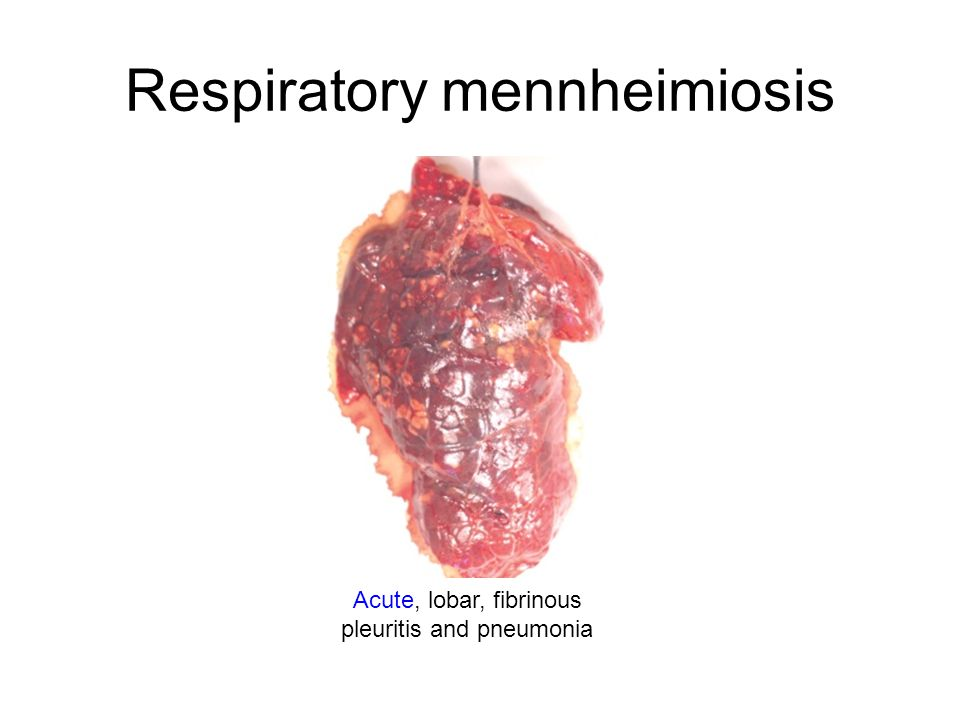 Respiratory mennheimiosis Acute, lobar, fibrinous pleuritis and pneumonia