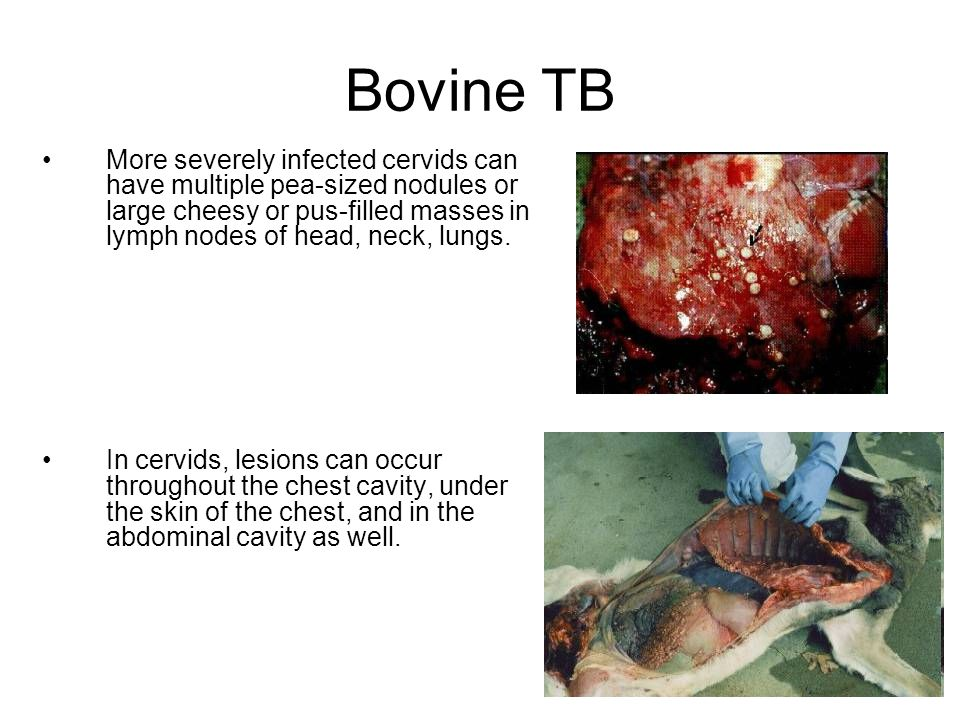 Bovine TB More severely infected cervids can have multiple pea-sized nodules or large cheesy or pus-filled masses in lymph nodes of head, neck, lungs.