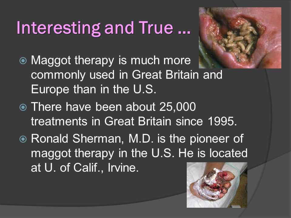 Interesting and True …  Maggot therapy is much more commonly used in Great Britain and Europe than in the U.S.
