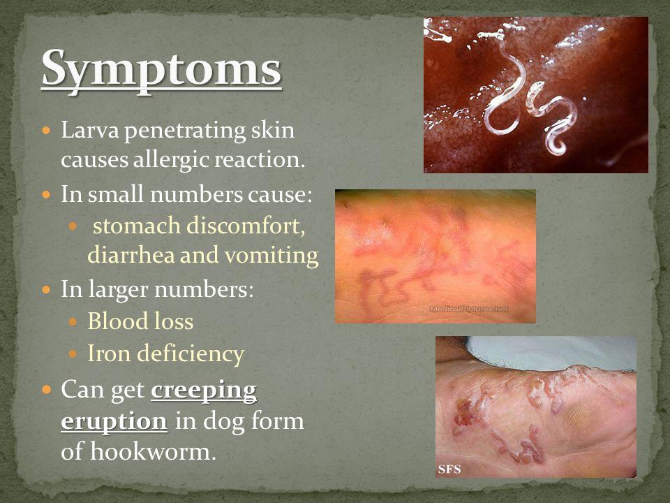 Larva penetrating skin causes allergic reaction.