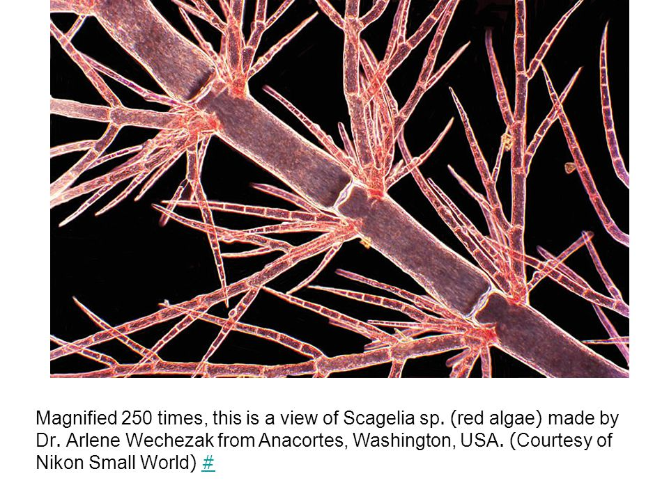 Magnified 250 times, this is a view of Scagelia sp.