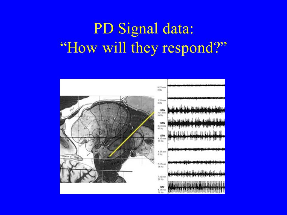 "PD Signal data: ""How will they respond?"""