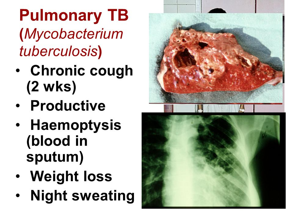 Pulmonary TB (Mycobacterium tuberculosis) Chronic cough (2 wks) Productive Haemoptysis (blood in sputum) Weight loss Night sweating