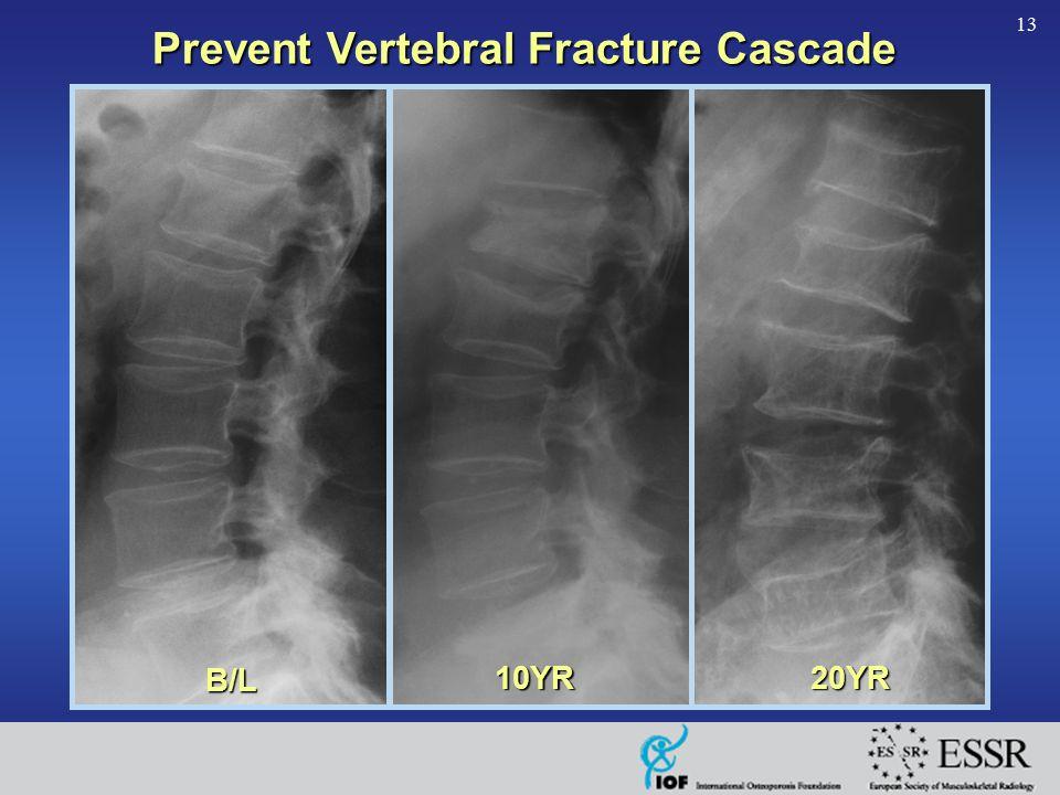 13 B/L 10YR20YR Prevent Vertebral Fracture Cascade