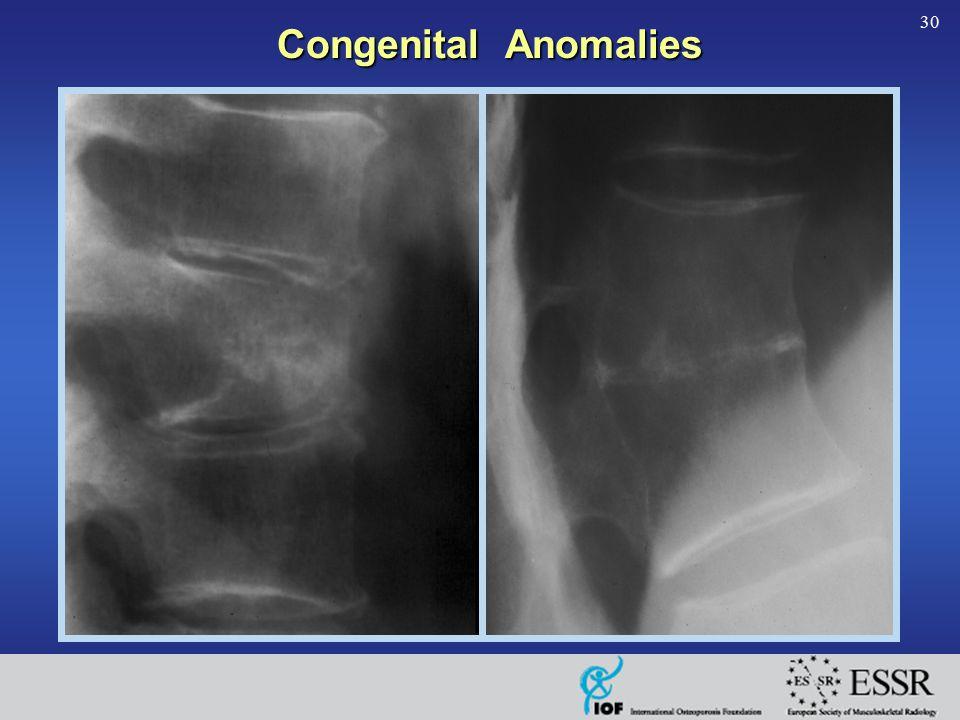 30 Congenital Anomalies