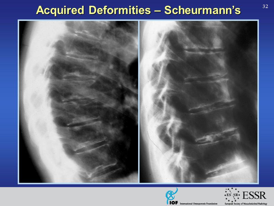 32 Acquired Deformities – Scheurmann's