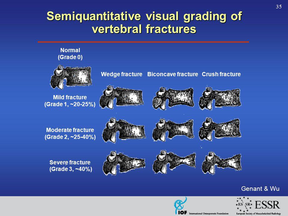 35 Semiquantitative visual grading of vertebral fractures Genant & Wu Normal (Grade 0) Wedge fractureBiconcave fractureCrush fracture Mild fracture (Grade 1, ~20-25%) Moderate fracture (Grade 2, ~25-40%) Severe fracture (Grade 3, ~40%)