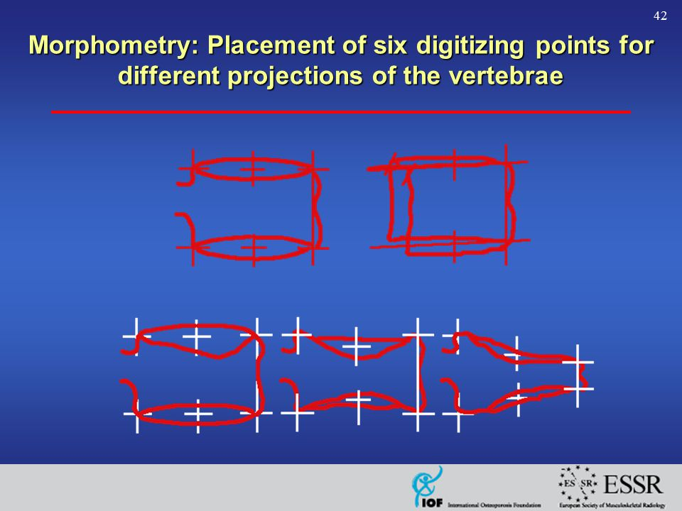 42 Morphometry: Placement of six digitizing points for different projections of the vertebrae
