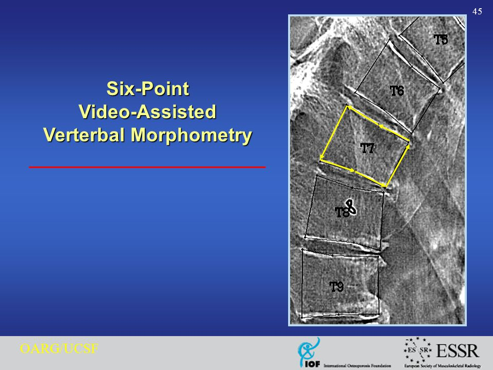 45 OARG/UCSF Six-PointVideo-Assisted Verterbal Morphometry