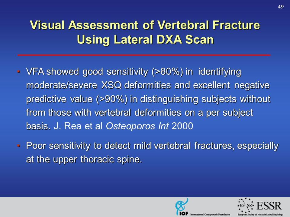 49 VFA showed good sensitivity (>80%) in identifying moderate/severe XSQ deformities and excellent negative predictive value (>90%) in distinguishing