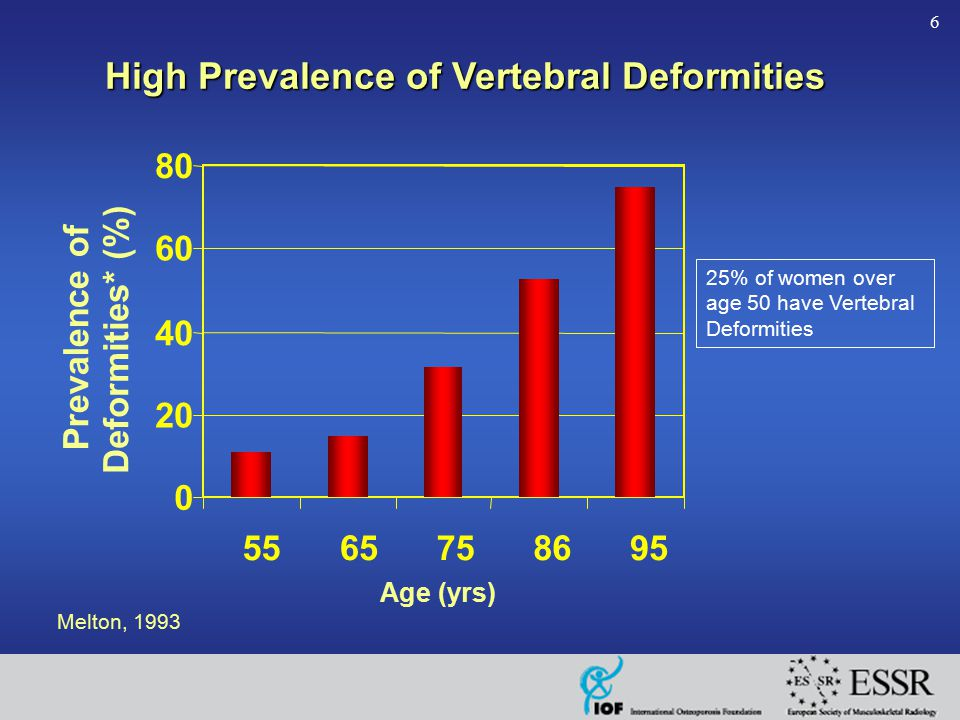 6 0 20 40 60 80 5565758695 Age (yrs) Prevalence of Deformities* (%) Melton, 1993 25% of women over age 50 have Vertebral Deformities High Prevalence o