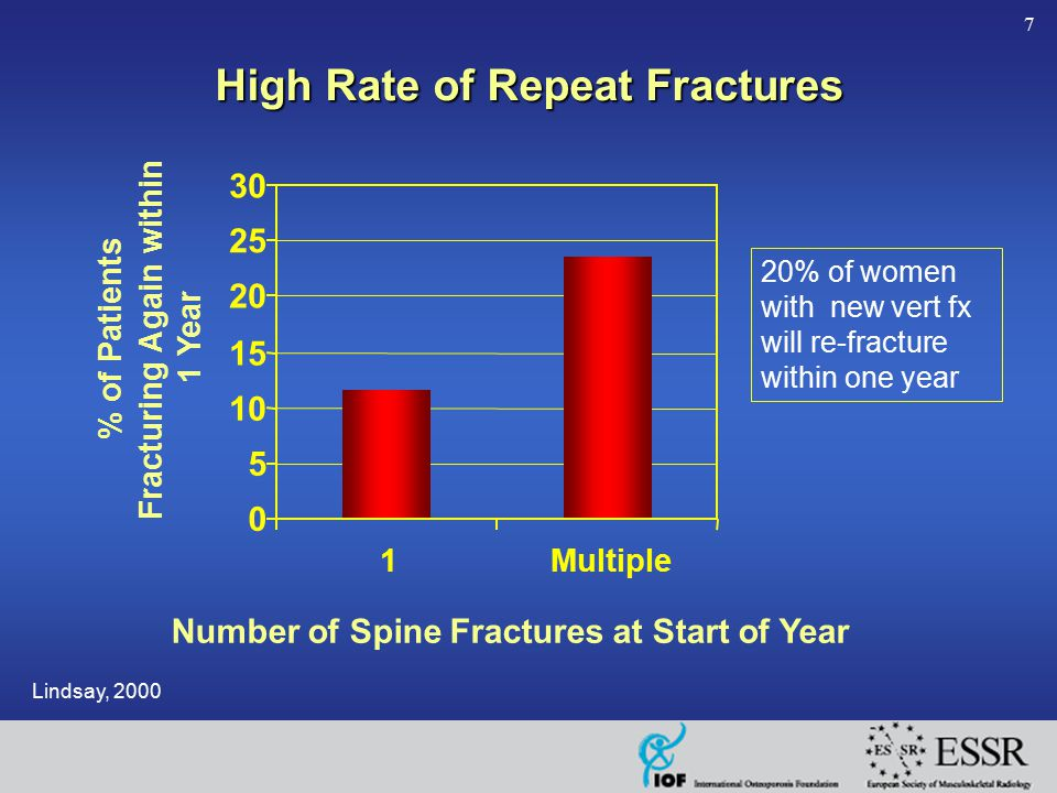 7 Number of Spine Fractures at Start of Year High Rate of Repeat Fractures Lindsay, 2000 0 5 10 15 20 25 30 1Multiple % of Patients Fracturing Again w