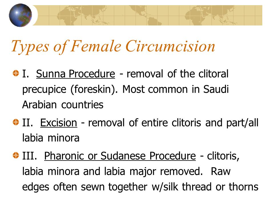Types of Female Circumcision I.Sunna Procedure - removal of the clitoral precupice (foreskin).