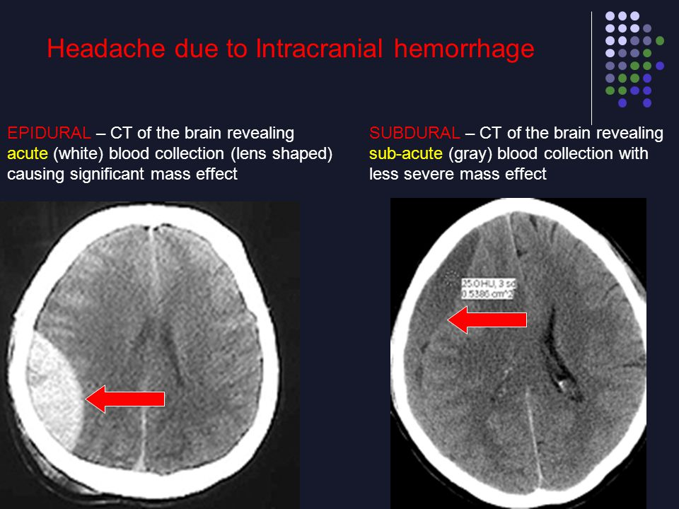 Headache due to Intracranial hemorrhage EPIDURAL – CT of the brain revealing acute (white) blood collection (lens shaped) causing significant mass eff