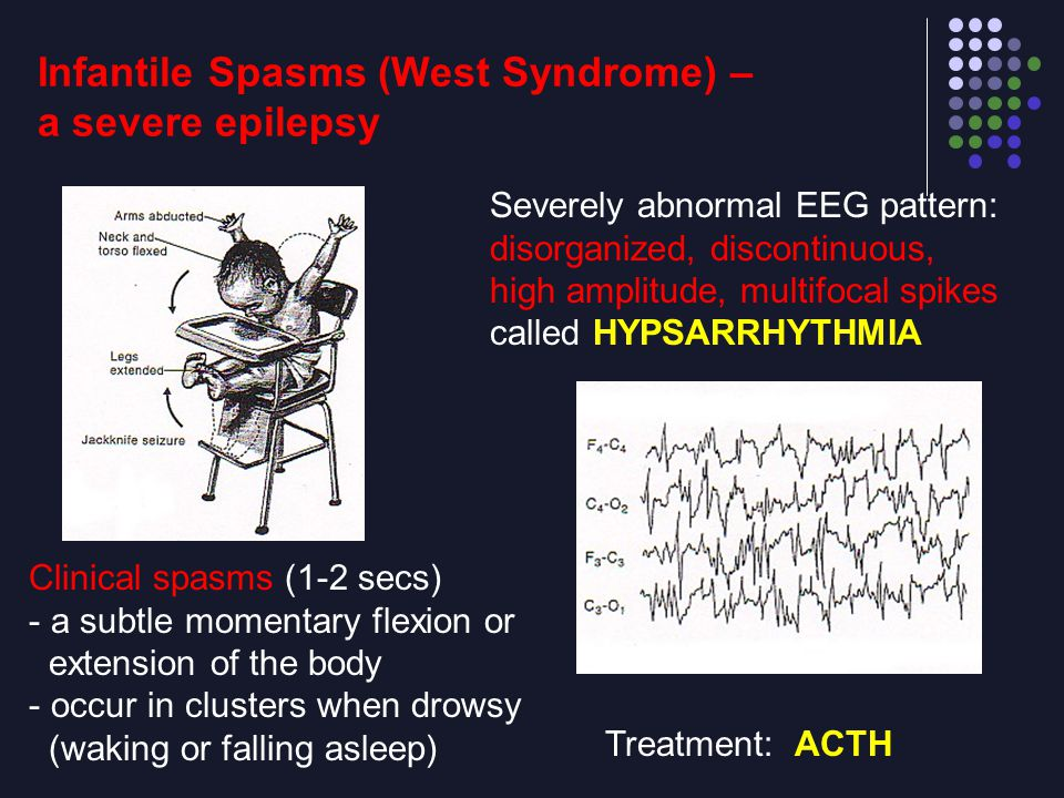 Infantile Spasms (West Syndrome) – a severe epilepsy Clinical spasms (1-2 secs) - a subtle momentary flexion or extension of the body - occur in clust