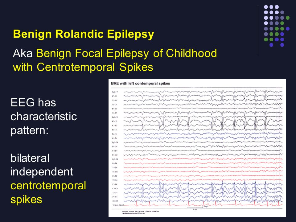 Aka Benign Focal Epilepsy of Childhood with Centrotemporal Spikes EEG has characteristic pattern: bilateral independent centrotemporal spikes