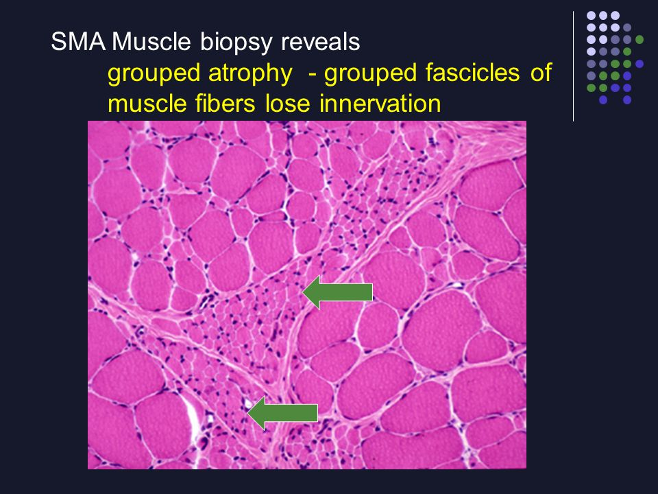 SMA Muscle biopsy reveals grouped atrophy - grouped fascicles of muscle fibers lose innervation