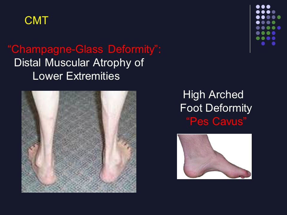 "CMT ""Champagne-Glass Deformity"": Distal Muscular Atrophy of Lower Extremities High Arched Foot Deformity ""Pes Cavus"""