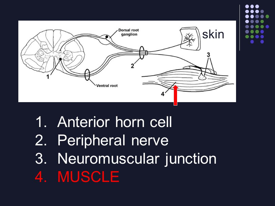 1.Anterior horn cell 2.Peripheral nerve 3.Neuromuscular junction 4.MUSCLE skin