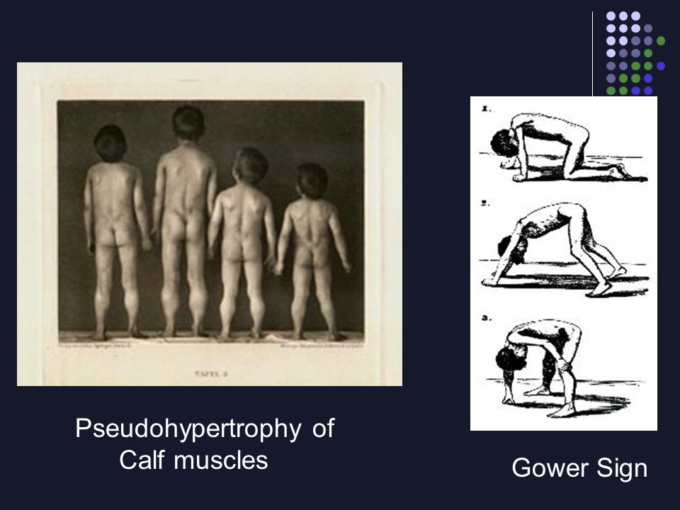 Pseudohypertrophy of Calf muscles Gower Sign