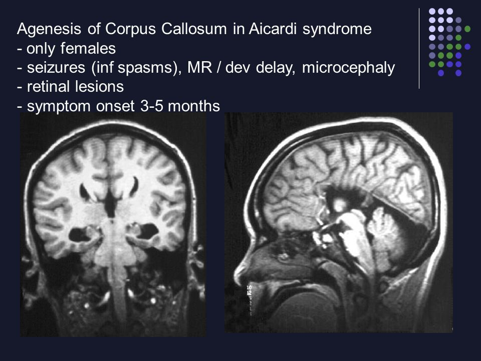 Agenesis of Corpus Callosum in Aicardi syndrome - only females - seizures (inf spasms), MR / dev delay, microcephaly - retinal lesions - symptom onset