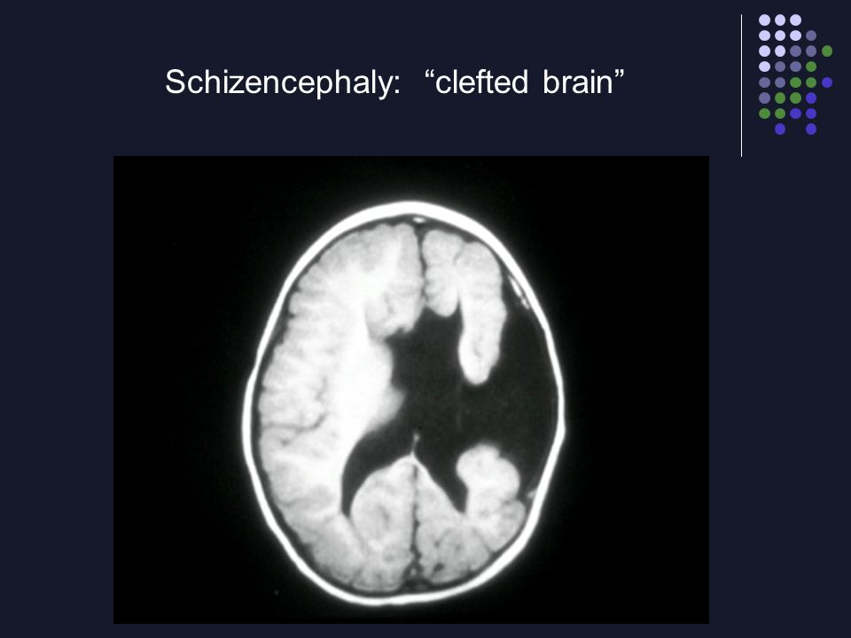 "Schizencephaly: ""clefted brain"""