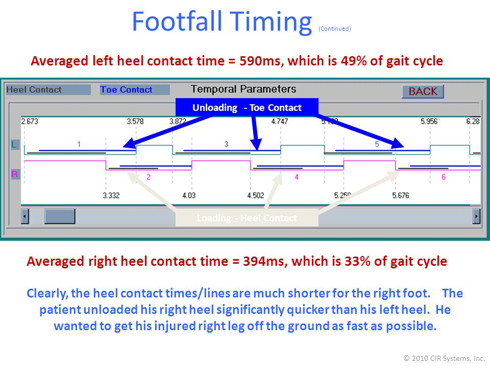 Footfall Timing (Continued) Averaged left heel contact time = 590ms, which is 49% of gait cycle Averaged right heel contact time = 394ms, which is 33% of gait cycle Clearly, the heel contact times/lines are much shorter for the right foot.