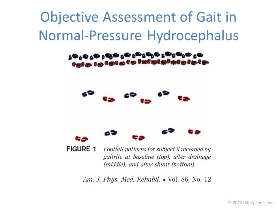 Objective Assessment of Gait in Normal-Pressure Hydrocephalus © 2010 CIR Systems, Inc.