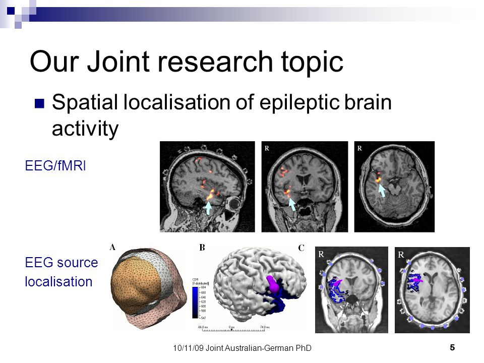 10/11/09 Joint Australian-German PhD5 Our Joint research topic Spatial localisation of epileptic brain activity EEG/fMRI EEG source localisation