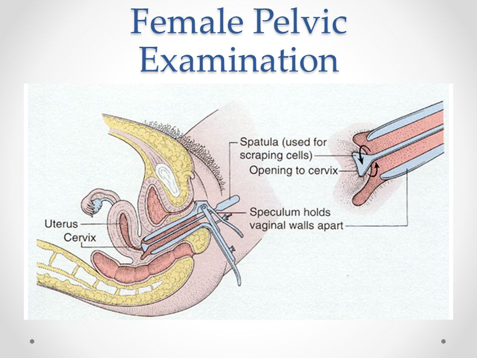 Female Pelvic Examination