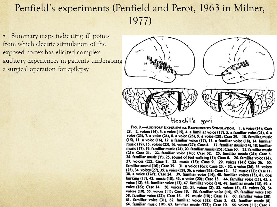 Penfield's experiments (Penfield and Perot, 1963 in Milner, 1977) Summary maps indicating all points from which electric stimulation of the exposed cortex has elicited complex auditory experiences in patients undergoing a surgical operation for epilepsy