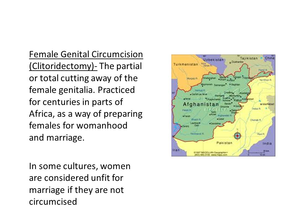 Female Genital Circumcision (Clitoridectomy)- The partial or total cutting away of the female genitalia. Practiced for centuries in parts of Africa, a