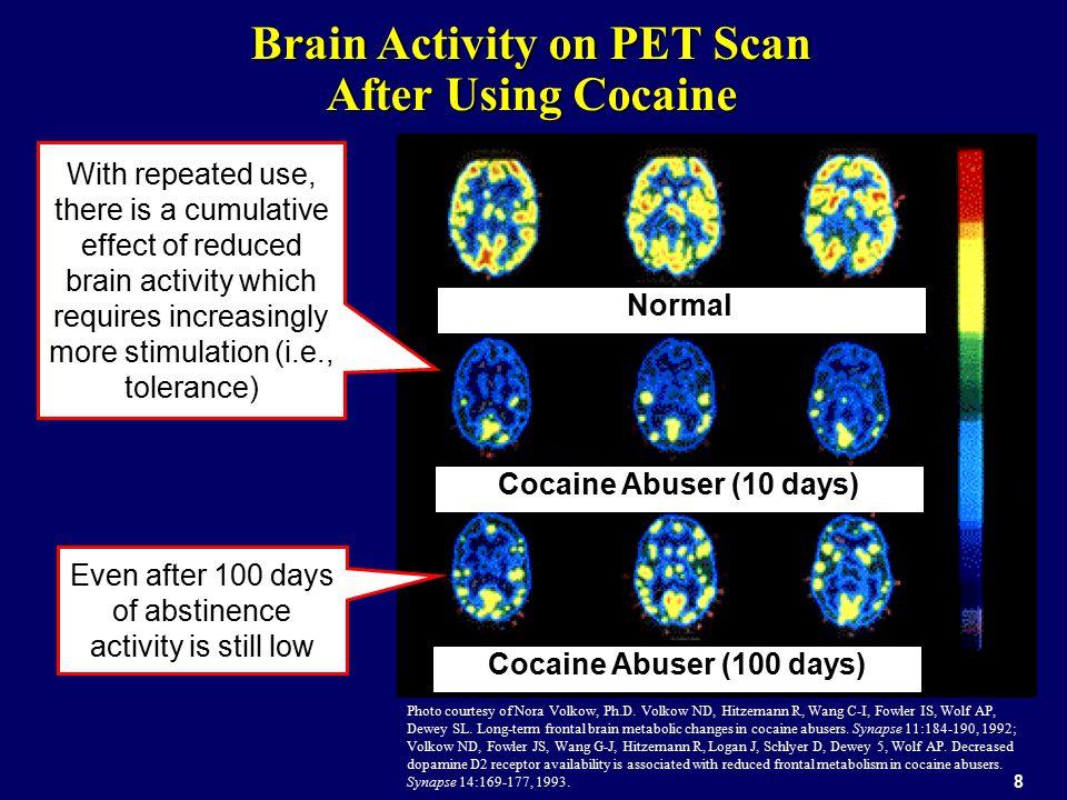 9 Image courtesy of Dr. GA Ricaurte, Johns Hopkins University School of Medicine