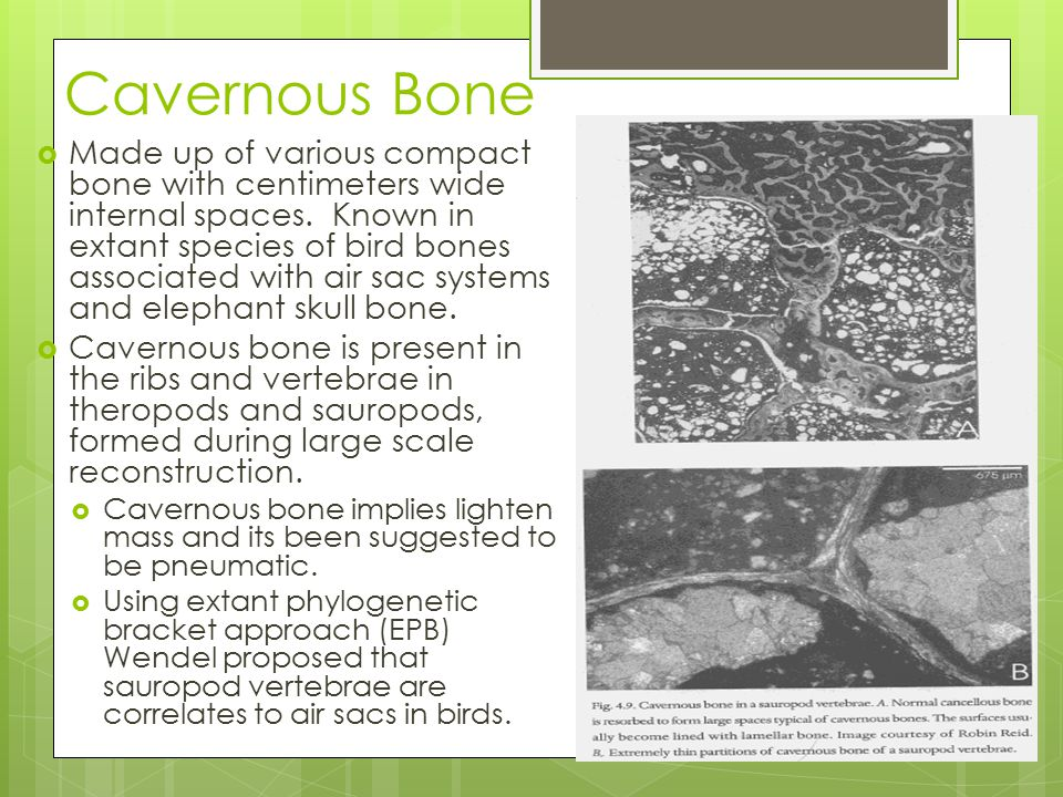 Cavernous Bone  Made up of various compact bone with centimeters wide internal spaces.