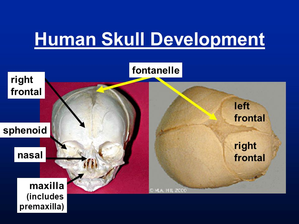 nasal right frontal maxilla (includes premaxilla) sphenoid left frontal right frontal fontanelle