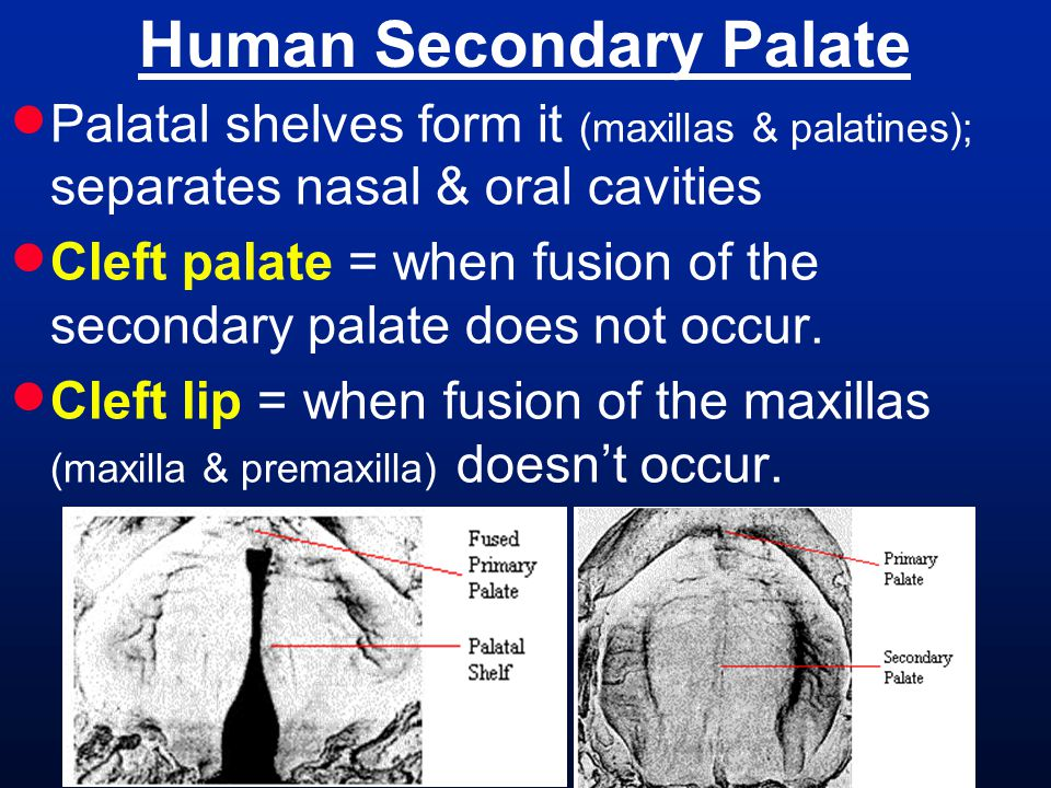 Human Secondary Palate  Palatal shelves form it (maxillas & palatines); separates nasal & oral cavities  Cleft palate = when fusion of the secondary palate does not occur.