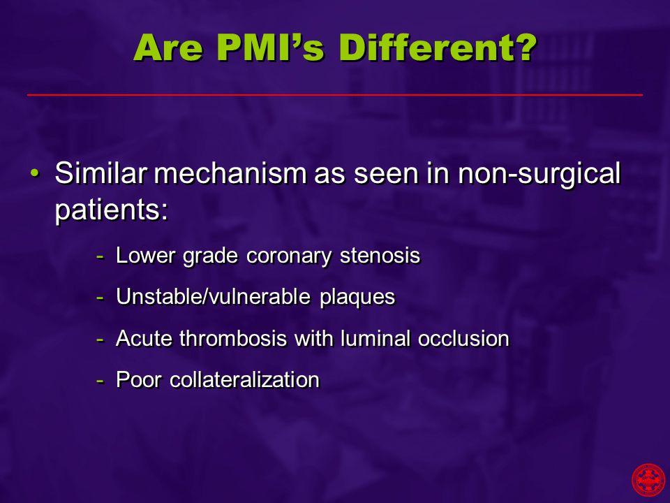 Are PMI's Different.
