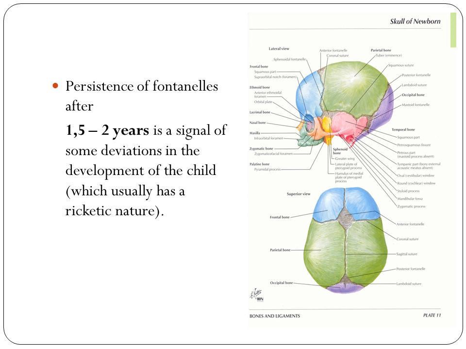 Persistence of fontanelles after 1,5 – 2 years is a signal of some deviations in the development of the child (which usually has a ricketic nature).