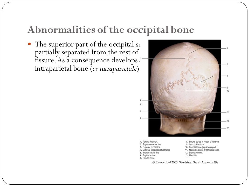 Abnormalities of the occipital bone The superior part of the occipital squama can be totally or partially separated from the rest of the bone by a transverse fissure.