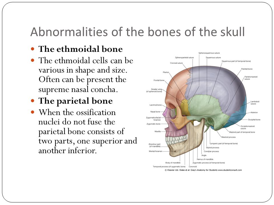Abnormalities of the bones of the skull The ethmoidal bone The ethmoidal cells can be various in shape and size.