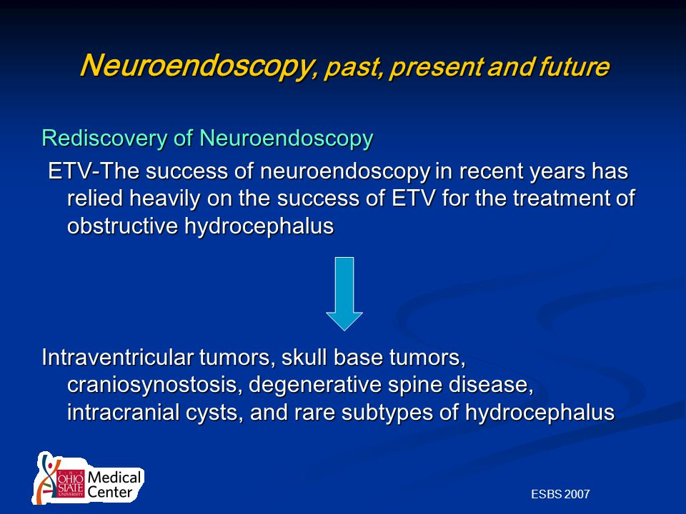 ESBS 2007 Neuroendoscopy, past, present and future Rediscovery of Neuroendoscopy ETV-The success of neuroendoscopy in recent years has relied heavily on the success of ETV for the treatment of obstructive hydrocephalus ETV-The success of neuroendoscopy in recent years has relied heavily on the success of ETV for the treatment of obstructive hydrocephalus Intraventricular tumors, skull base tumors, craniosynostosis, degenerative spine disease, intracranial cysts, and rare subtypes of hydrocephalus