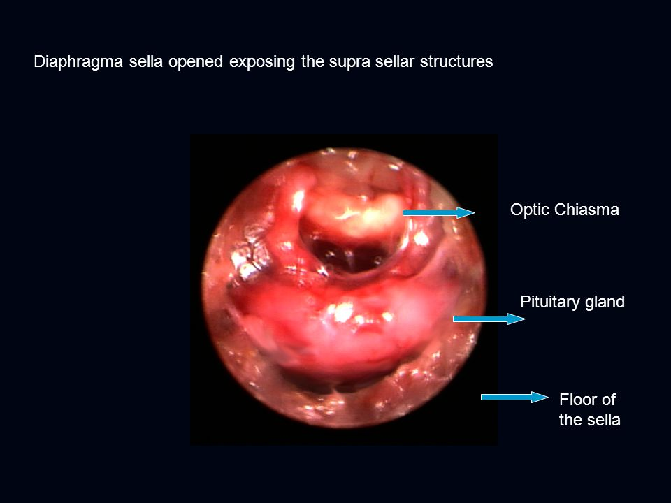 Diaphragma sella opened exposing the supra sellar structures Floor of the sella Pituitary gland Optic Chiasma