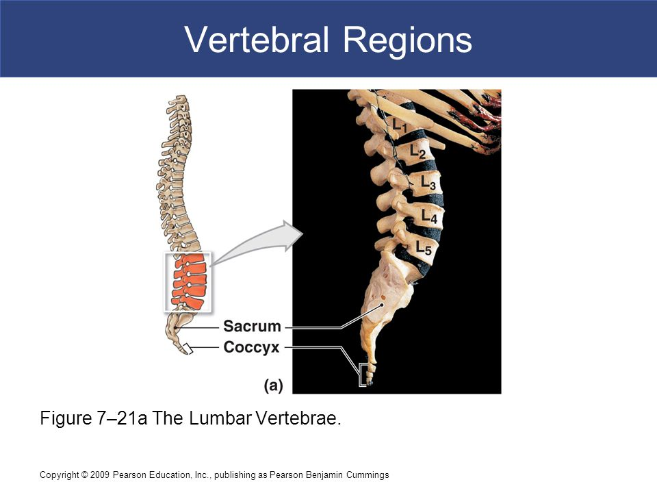 Copyright © 2009 Pearson Education, Inc., publishing as Pearson Benjamin Cummings Vertebral Regions Figure 7–21a The Lumbar Vertebrae.