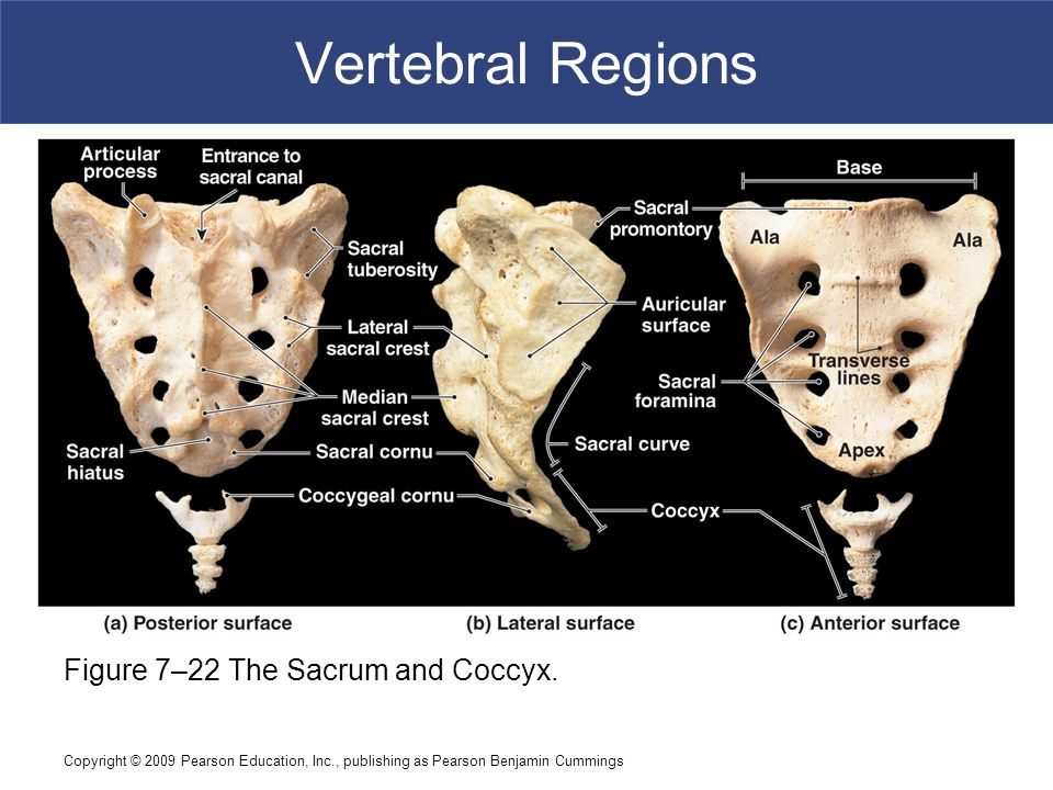 Copyright © 2009 Pearson Education, Inc., publishing as Pearson Benjamin Cummings Vertebral Regions Figure 7–22 The Sacrum and Coccyx.